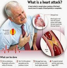 heart-attack-drsanati-حمله قلبی سایت دکتر حمیدرضا صنعتی