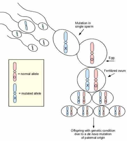 سندروم سویر-swyer-syndrome-drhamidrezasanati
