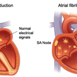 atrial-fibrillation - فیبریلاسیون دهلیزی- دکتر حمیدرضا صنعتی فوق تخصص قلب و عروق